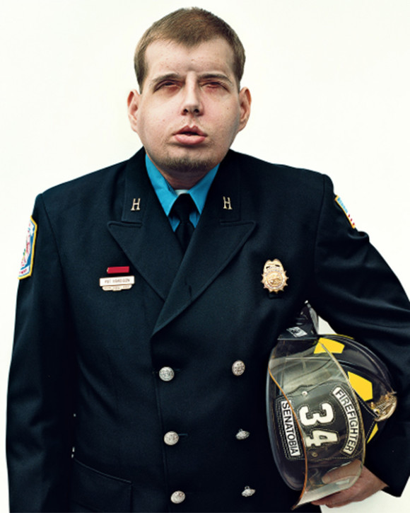 Inside the Historic Face Transplant of Hero Firefighter